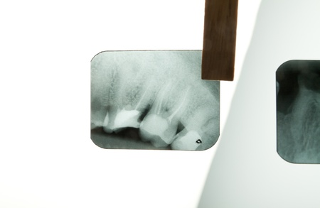 X-ray of human teeth on light background Stock Photo - 17360200