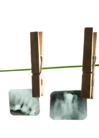 X-ray of human teeth on light background Stock Photo - 17360196