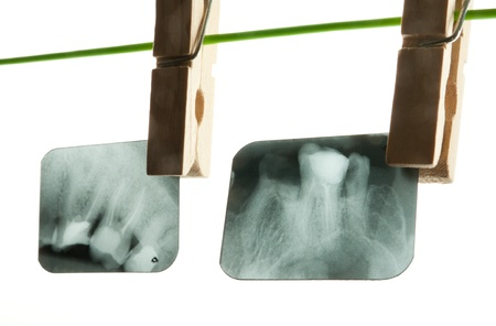 X-ray of human teeth on light background Stock Photo - 17360202