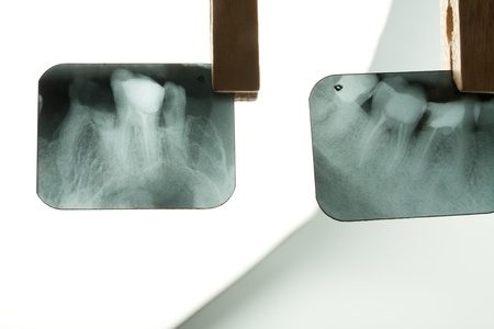 X-ray of human teeth on light background photo