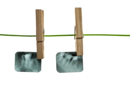 X-ray of human teeth on light background Stock Photo - 17364800