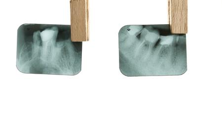 X-ray of human teeth on light background Stock Photo - 17364801