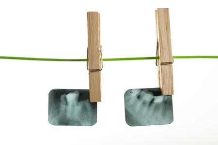 dental clinic: X-ray of human teeth on light background