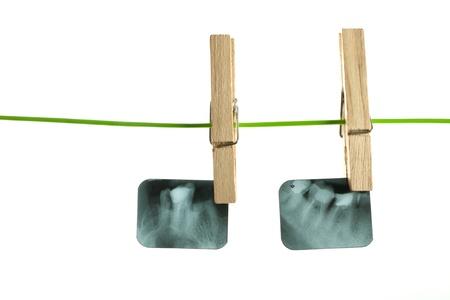 X-ray of human teeth on light background Stock Photo - 17364797