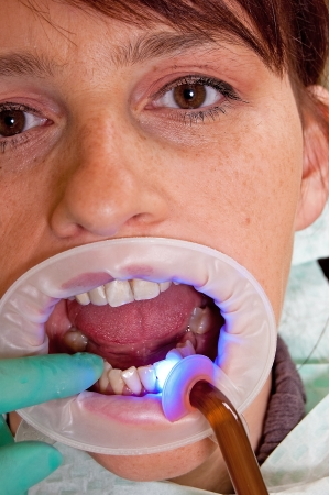 Dental treatment in a young woman in a dentists office photo