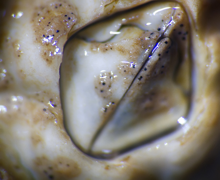 The sea acorn, shellback (Balanus) on algae on stones at low tide - fouler, xylotria, harmful animals. Macro. Invisible to eye world of marine plants and animals 版權商用圖片