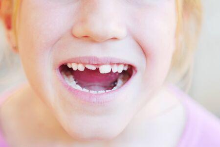 Kid with crooked teeth. Caucasian girl show her diastema teeth. Archivio Fotografico