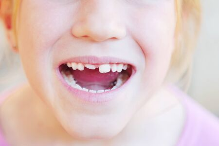 Kid with crooked teeth. Caucasian girl show her diastema teeth.