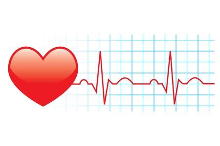 of electrocardiogram: Ilustraci�n de electrocardiograma sobre fondo blanco