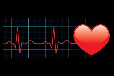 of electrocardiogram: Ilustraci�n de electrocardiograma sobre fondo negro