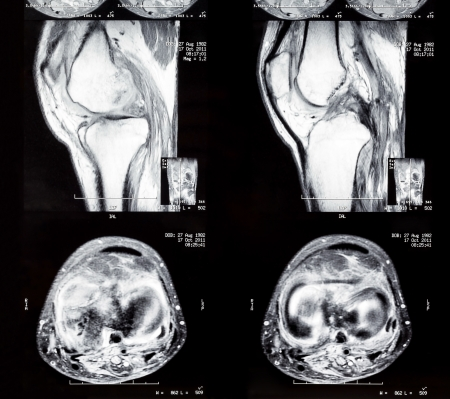 X-ray image of knee joint legs  Computed tomography photo