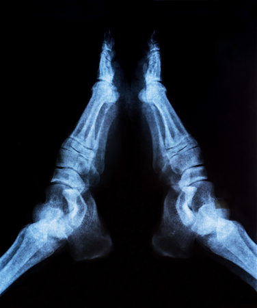 tomography: X-ray image of joint foot. Research on the computed tomography