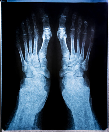 X-ray image of joint foot. Research on the computed tomography Stock Photo - 111263169