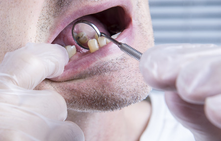 Closeup teeth, dental health care clinic with missing tooth Stock Photo