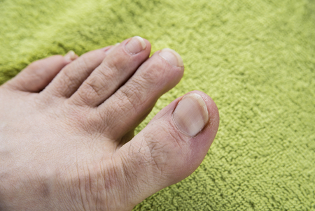 Dirty nails on man feet on green towel