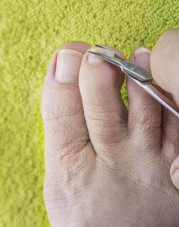 Nails on man feet cut with scissors on green towel