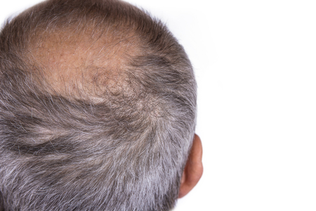 Aged man concerned with hair loss. Baldness concept