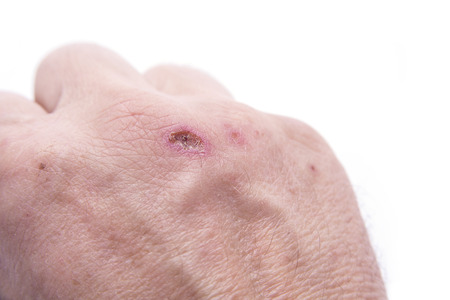 The wound on the hand. Scab after a few days. Standard-Bild - 109653888