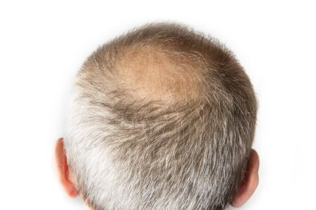 Bald man with comb. Hair Loss concept