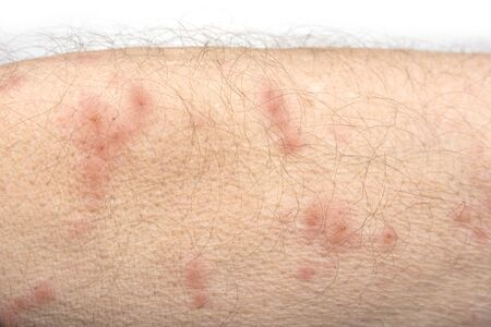 Skin disease rash on a man arm