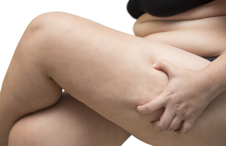 squeeze shape: Woman squeeze leg fat wearing black underwear bra on white isolated
