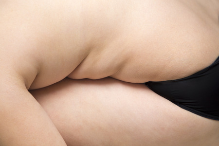 excessive: Woman excessive belly fat fat woman wear black underwear show fat cellulite Stock Photo
