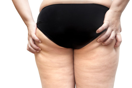 squeeze shape: Buttock and leg cellulite problem young woman stretch marks Stock Photo