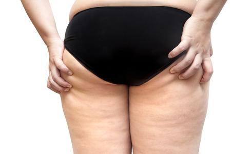 gordos: Mujer joven estr�as y la celulitis nalga pierna problemas