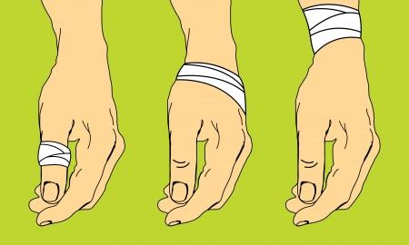 luxacion: Primeros auxilios para los esguinces Vectores
