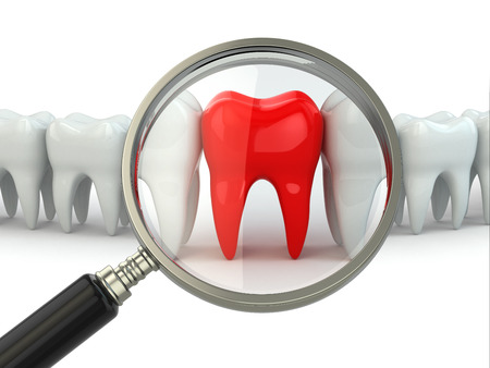 dentures: Search aching tooth in row of healthy teeth. 3d