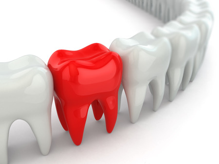 artificial teeth: Aching tooth in row of healthy teeth. 3d
