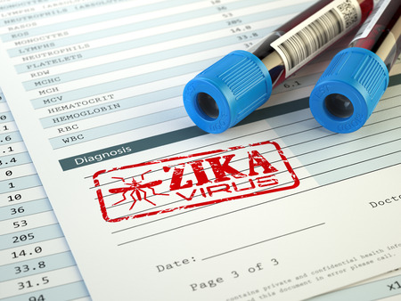 Zika virus diagnosis. Blood test sample with  Zika virus stamp, 3d illustration