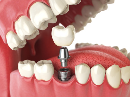 Tooth human implant. Dental concept. Human teeth or dentures. 3d illustration Banco de Imagens - 59994567