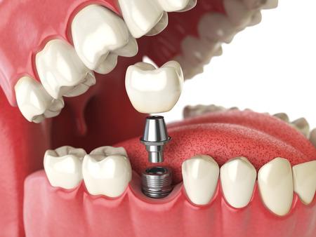Tooth menschliche Implantat. Dental-Konzept. Menschliche Zähne oder Zahnersatz. 3D-Darstellung
