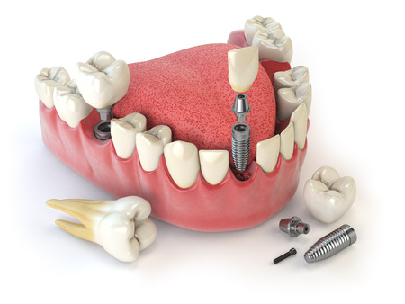 Tand menselijke implantaat. Dental concept. Menselijke tanden of kunstgebit. 3d illustratie