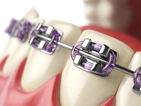 Zähne mit Klammern oder Klammern in offenen menschlichen Mund. Zahnpflege-Konzept. 3D-Darstellung