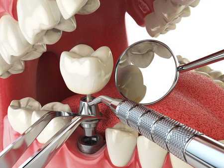 Tooth human implant. Dental implantation concept. Human teeth or dentures anddental tools. 3d illustration Imagens