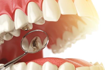 Diente humano con la carie, agujero y herramientas. Concepto de búsqueda dental. Los dientes o dentaduras postizas. 3d ilustración