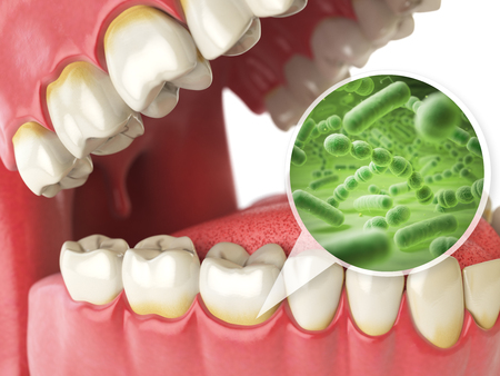 Bacterias and viruses around tooth. Dental hygiene medical concept. 3d illustration Stock Illustration - 71865960