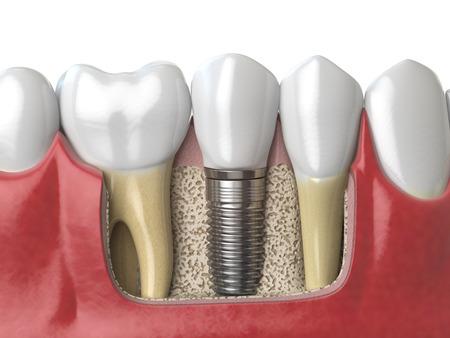 Anatomy of healthy teeth and tooth dental implant in human dentura. 3d illustration Reklamní fotografie