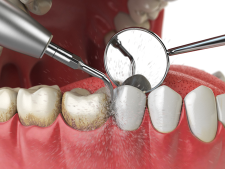 Pulizia professionale dei denti. La macchina per la pulizia dei denti ad ultrasuoni elimina il tartaro dai denti umani. Illustrazione 3D Archivio Fotografico