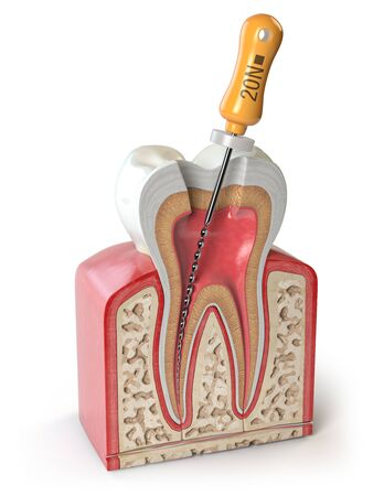 Cross section of Human tooth with endodontic file isolated on white Stock Photo