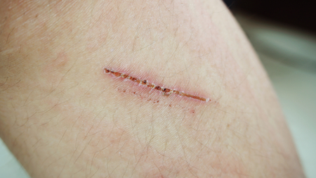 wound with scabs on the knee of woman