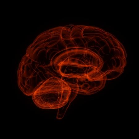 Human brain in x-ray view