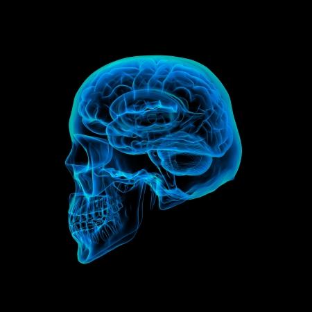 cerebra: Human brain X ray - Skull X ray