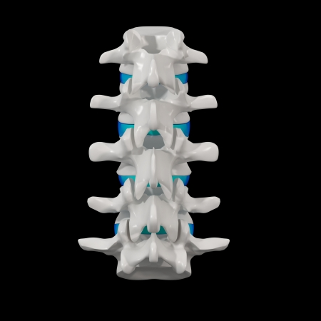 intervertebral: 3d rendered - spine structure on black background with blue spinal disc - back view Stock Photo