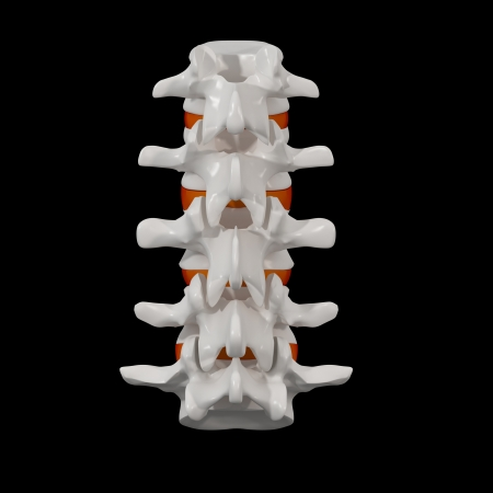 3d rendered - spine structure on black background with red spinal disc - back view