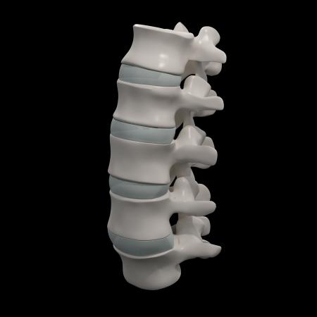 intervertebral: 3d rendered illustration-lumbar side view