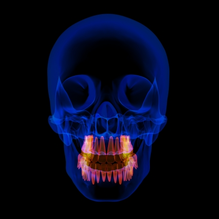 human x ray skull on black background