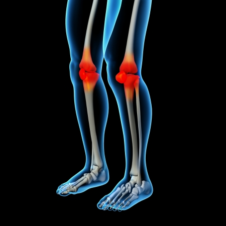 physical therapy: Human knee pain with the anatomy of a skeleton leg Stock Photo